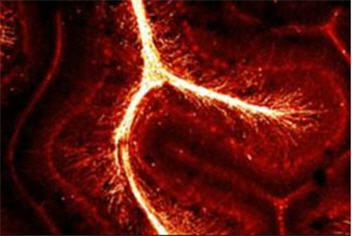 Scientists find brain's complexity